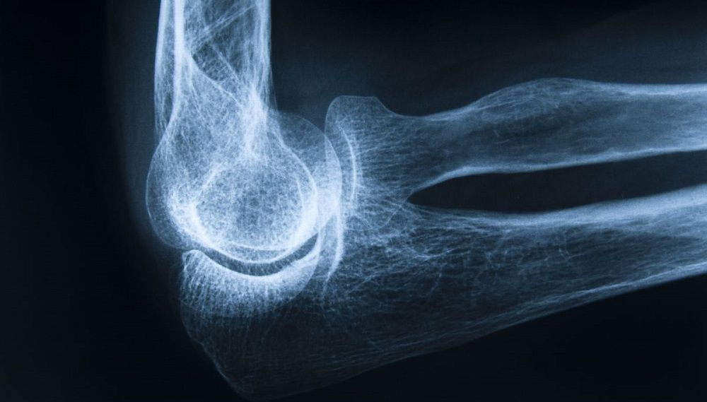 Рентген сустава с остеопорозом