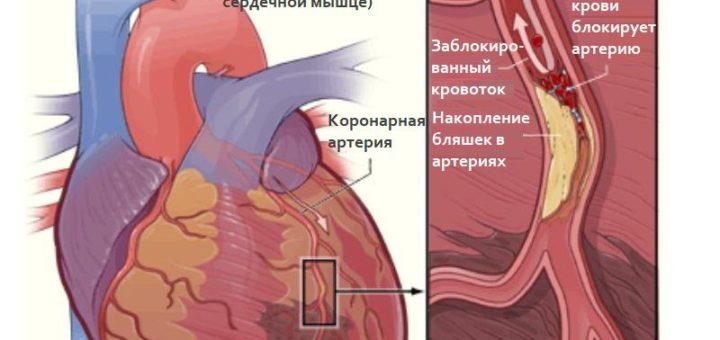 Ишемия миокарда причины симптомы диагностика лечение