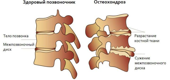 Остеохондроз что это за болезнь