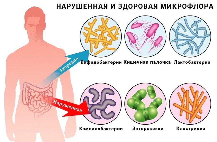 Причины гастроэнтерита
