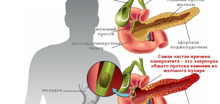 Панкреатит хронический и острый - симптомы, лечение, диета, прогноз