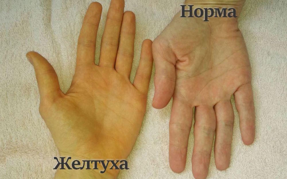 Синдром Жильбера: симптомы, анализ, диагностика, лечение