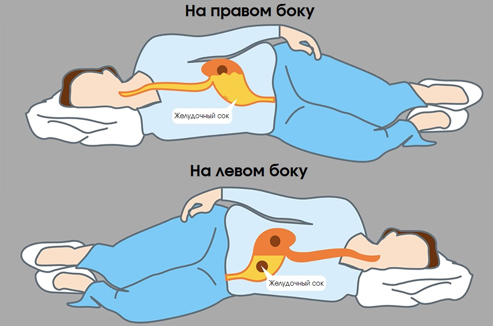 Желдочный сок стекает в пищевод при сне на правом боку, в отличии от сна на левом боку