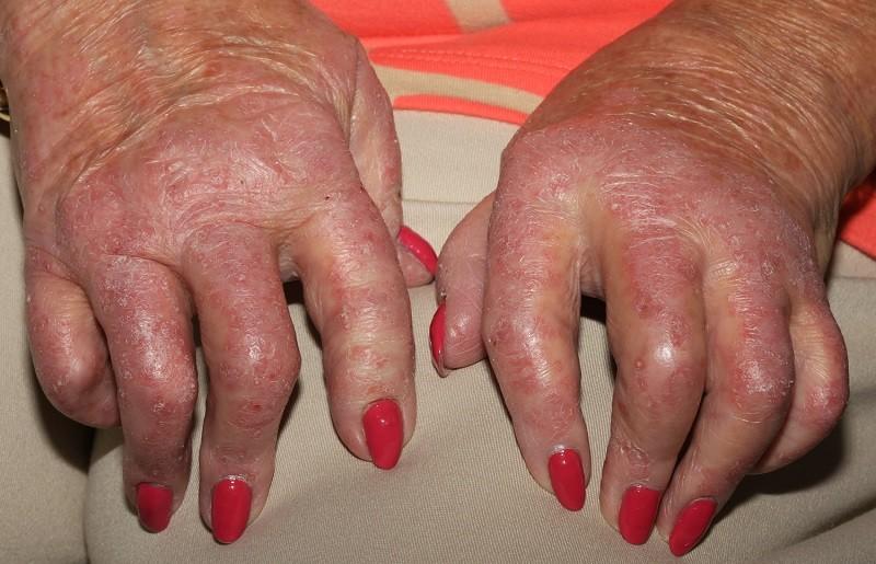 Фото рук при псориатическом артрите