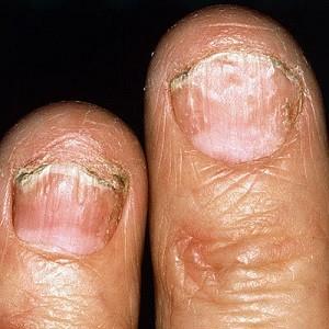 Точечная коррозия на пальцах рук