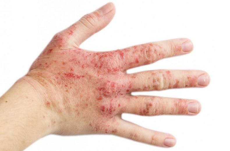 Сыпь может быть вызвана другими причинами, к примеру экзекмой