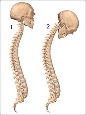 1 - нормальный позвоночник, 2 - позвоночник при болезни Бехтерева