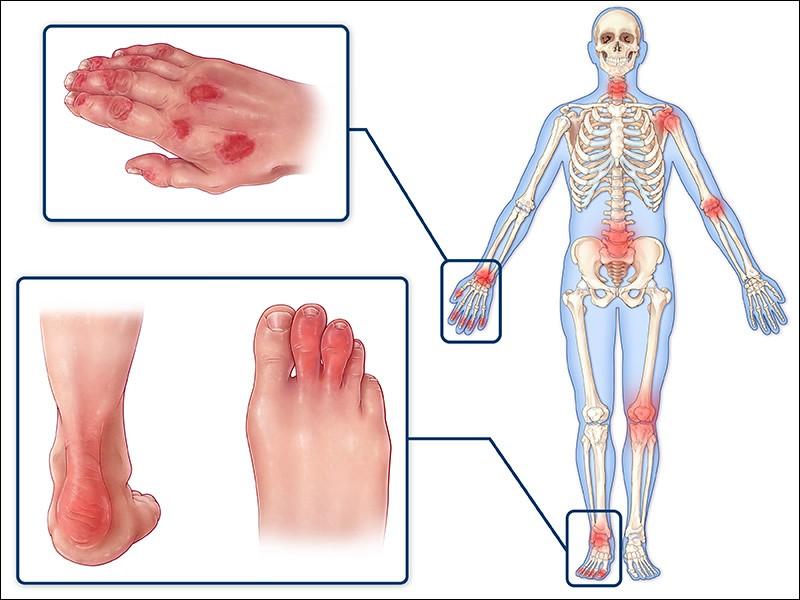 Псориатический артрит (псориатическая артропатия)