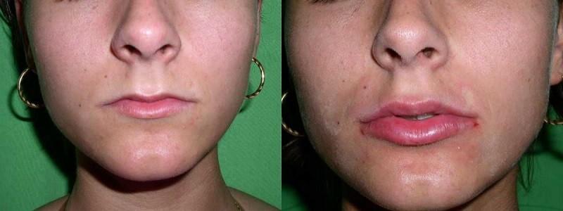 Увеличение губ с помощью хейлопластики. Фото до и после операции
