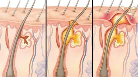Абсцесс: симптомы и лечение