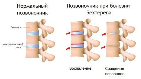 Болезнь Бехтерева (анкилозирующий спондилоартрит)