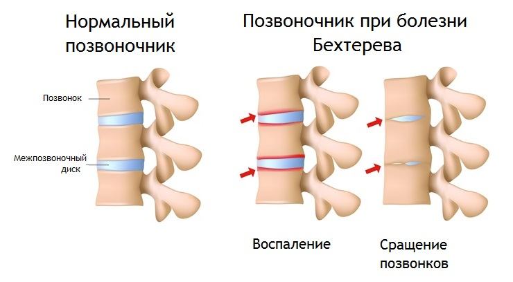 Болезнь бехтерева, какие анализы крови необходимо сдать Медотвод от прививок Тропарево