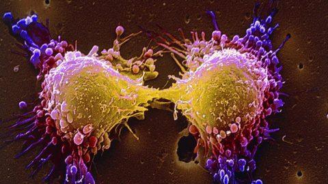 Обнаружен механизм естественной защиты, предотвращающий рак на самой ранней стадии