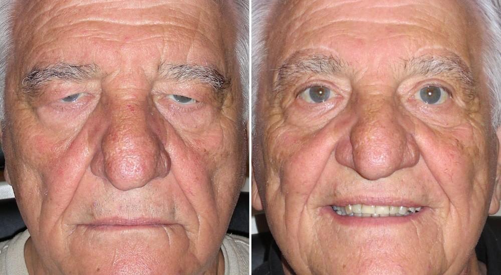 Верхняя блефаропластика фото до и после операции