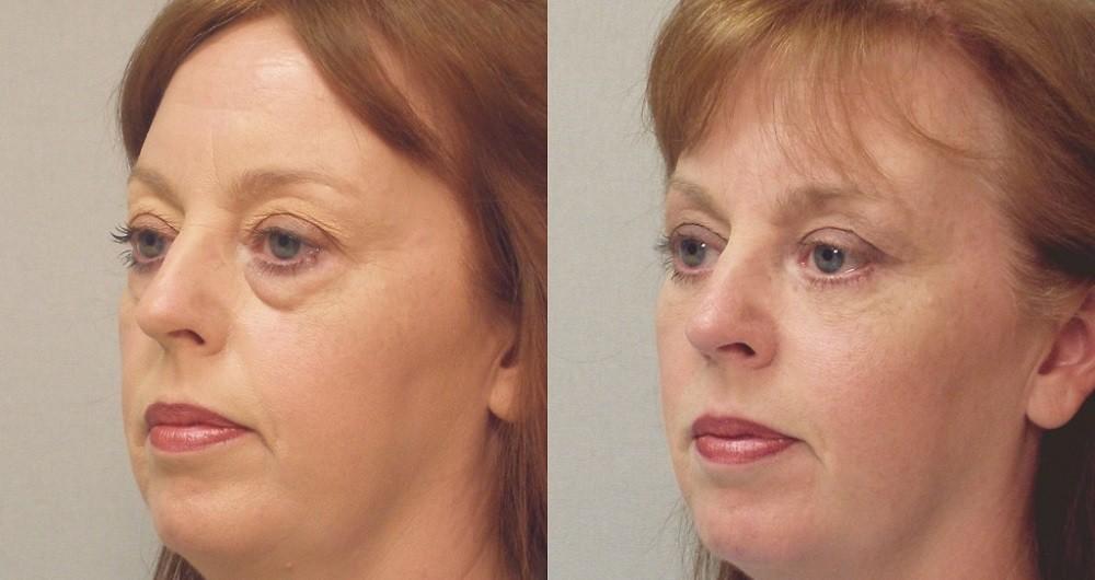 Нижняя блефаропластика фото до и после операции