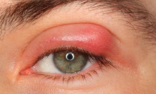 Как быстро лечить ячмень на глазу фото