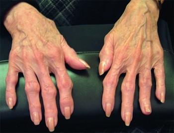 Остеоартрит на суставах пальцев, фото