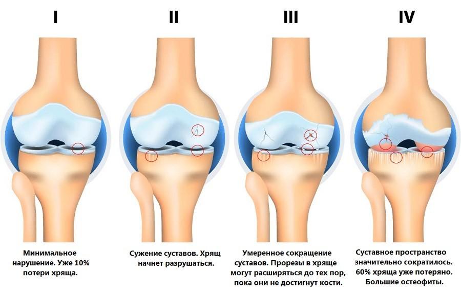 Стадии остеоартрита коленного сустава