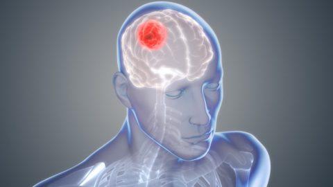 Глиобластома: новая надежда на лечение