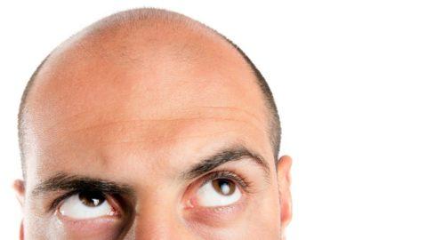 Облысение у мужчин — причины и лечение, средства от облысения