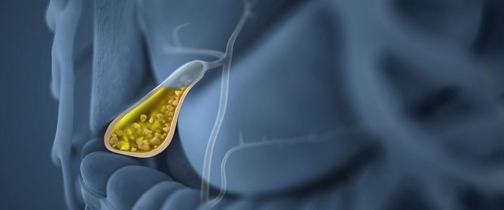 10 признаков больного желчного пузыря