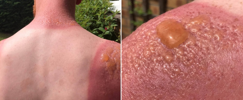 Солнечный ожог лечение в домашних условиях ребенку 185