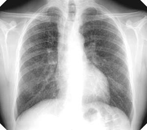 Ренген легких с пневмокониозом