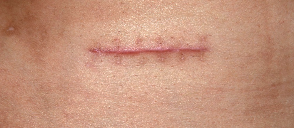 Как безболезненно оставить шрам