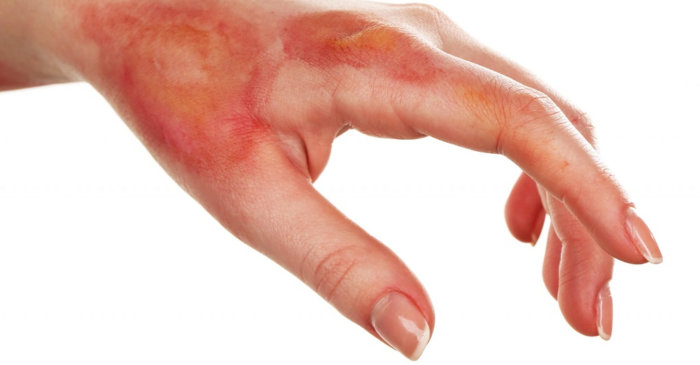 Как лечить ожог в домашних условиях?
