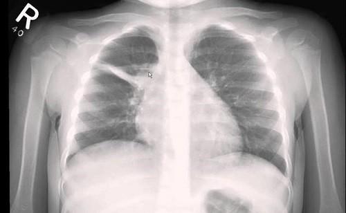 Рентген фиброза легких