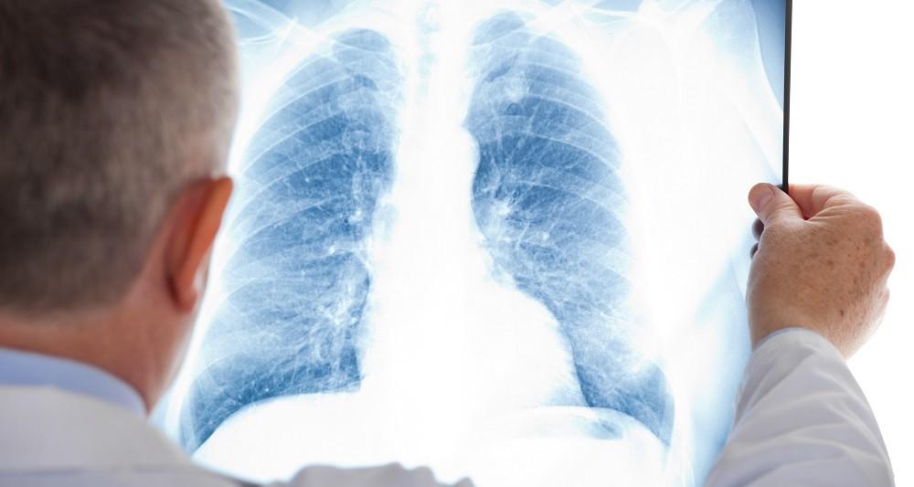 Симптомы фиброза легких
