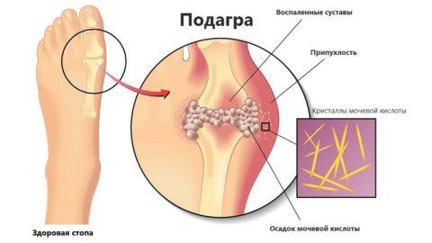 Подагра: причины, симптомы, диагностика, лечение в домашних условиях и советы