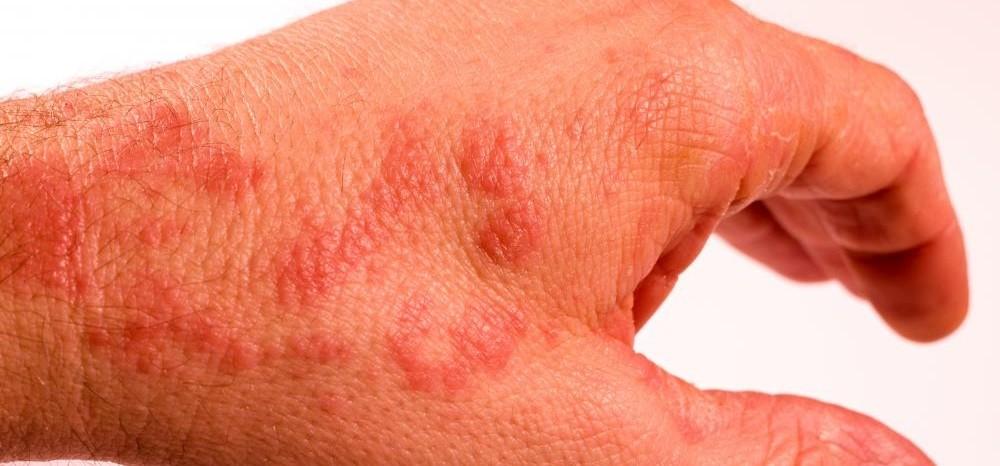 Симптомы аллергии на кофеин