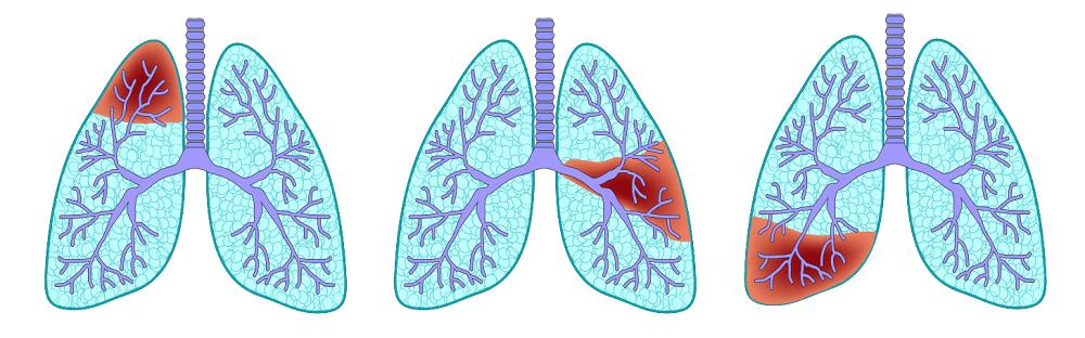 Пневмония и ее разновидности
