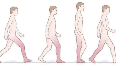 Нарушение походки (дисбазия): виды, причины, лечение
