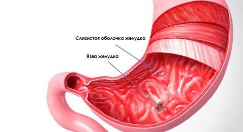 Язва желудка: симптомы, лечение, диета, народные средства