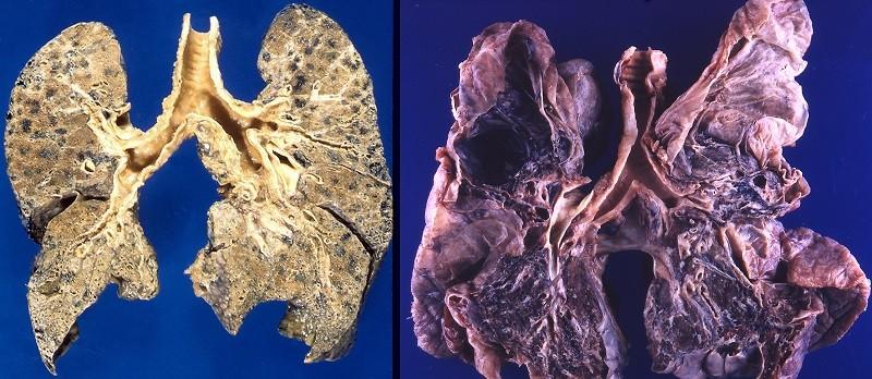 Легкие больного эмфиземой, фото