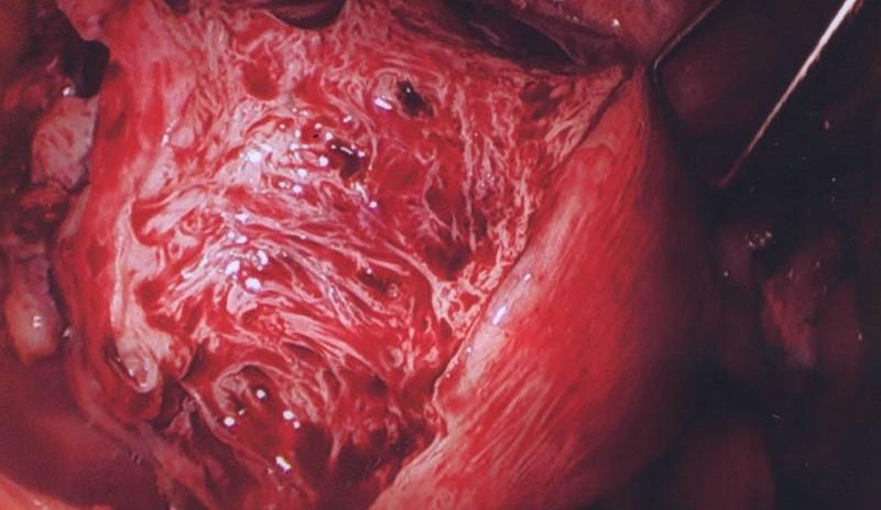 Диагностика аденомиоза матки
