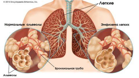 Эмфизема легких: симптомы, лечение, прогноз
