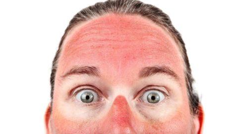 Средства от солнечных ожогов в домашних условиях