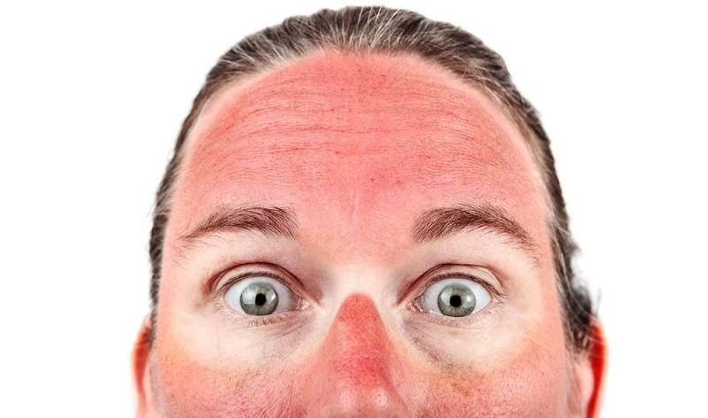 Средства от солнечных ожогов