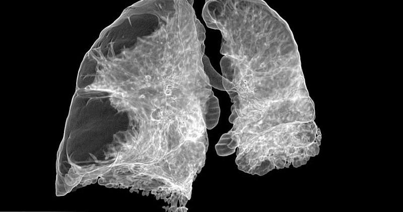 Эмфизема легких, симптомы