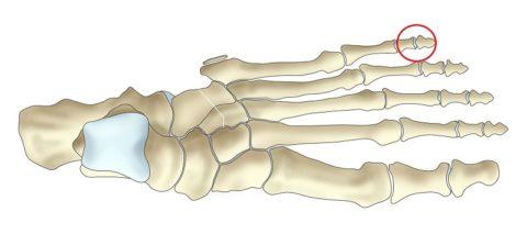 Перелом мизинца на ноге: симптомы, первая помощь, лечение