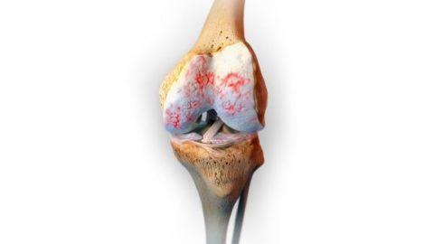 Аюрведические лекарства эффективно лечат остеоартрит