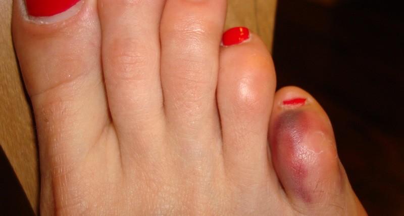 Фото перелома мизина на ноге