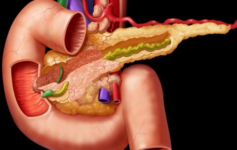 Некротический панкреатит: симптомы, диагностика, лечение