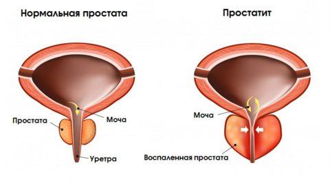 Простатит: причины, симптомы и признаки, диагностика, лечение